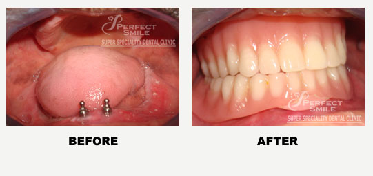 Implant Supported Over Denture