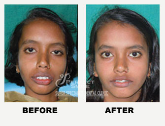 Orthodontic (Braces) Treatment